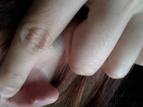 Rückseite Ohr - (Entzündung, helix piercing)