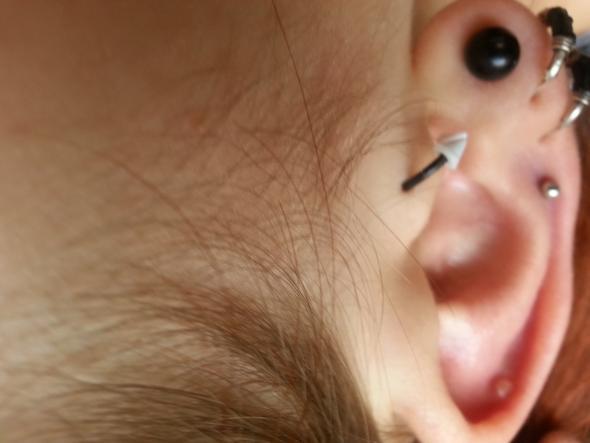 Innenseite Ohr - (Entzündung, helix piercing)
