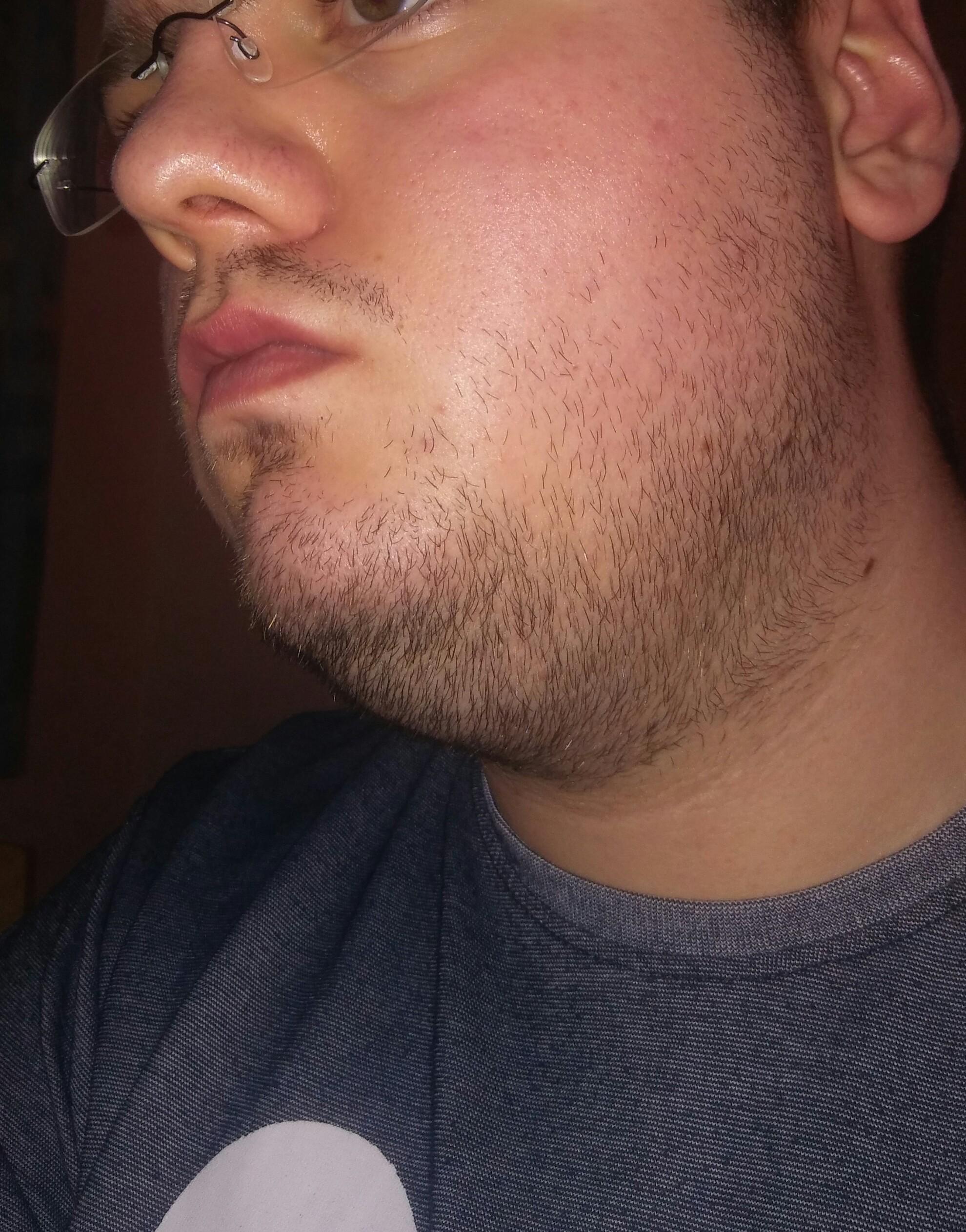 Soll ich mir einen Bart wachsen lassen oder nicht? (Haare)