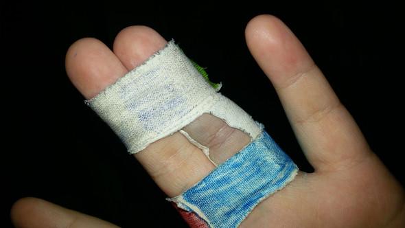 gestern Abend - (Arzt, Schmerzen, Finger)