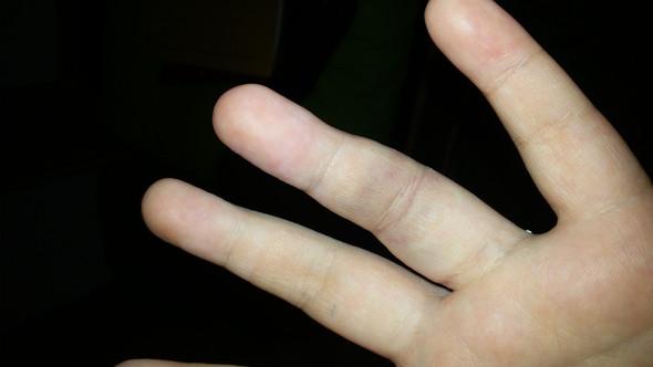 au danach - (Arzt, Schmerzen, Finger)