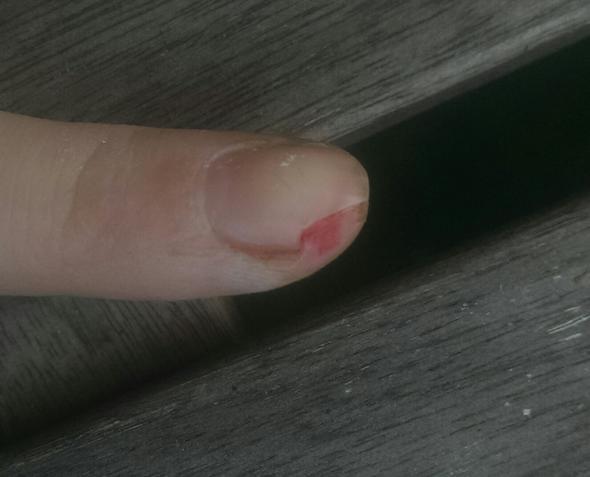 Nagel - (Verletzung, Nägel)
