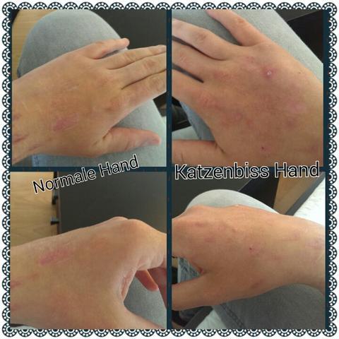 Linke ( normale Hand) und rechte Katzenbiss Hand - (Gesundheit, Medizin, Arzt)