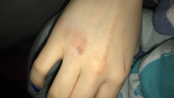 Sollte Ich Damit Zum Arzt Und Könnte Der Gebrochen Seinfinger