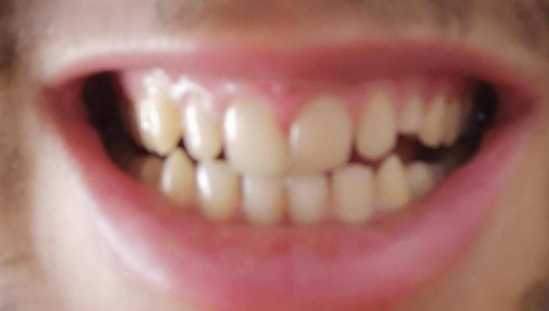 Sollte ich meine Zähne machen lassen? (Gesundheit und