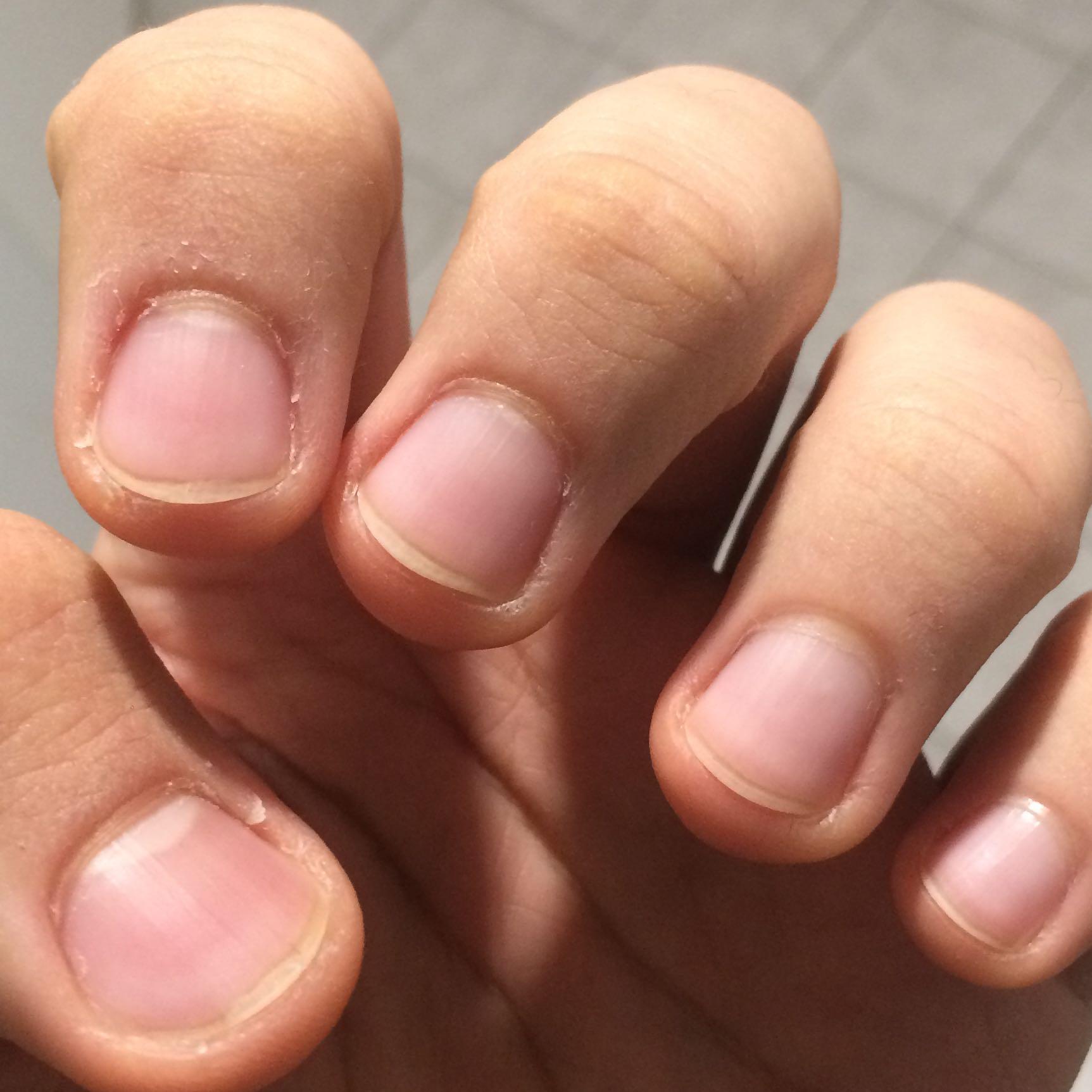 Sollte ich meinte Nägel schneiden? (Fingernägel, Lang)