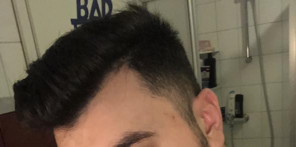 - (Haare, Frisur, Haarausfall)