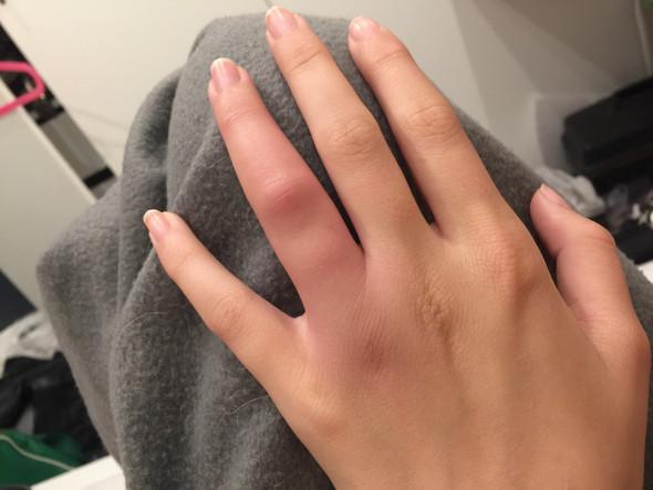 Der Finger  - (Schule, Arzt, Schmerzen)