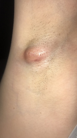 Haut am arm unter der knubbel Lipom