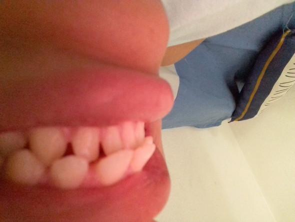 - (Zahnarzt, Zahnspange)