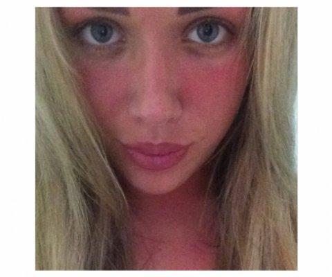 Sonnenbrand im Gesicht was soll ich nur machen