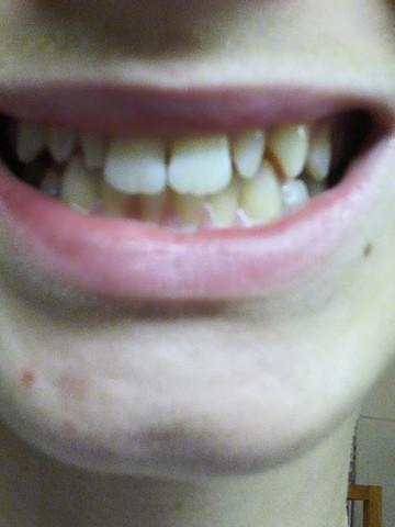 Zähne schneller wachsen lassen