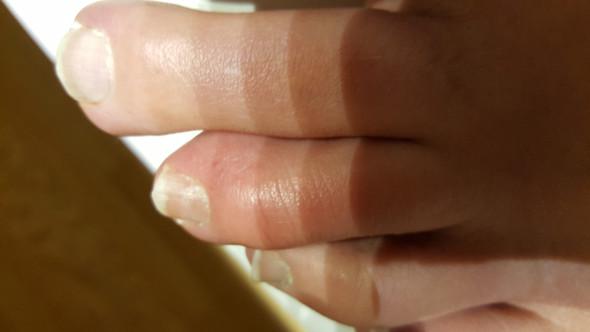 Bild1 - (Haut, Allergie, EntzÜndung)