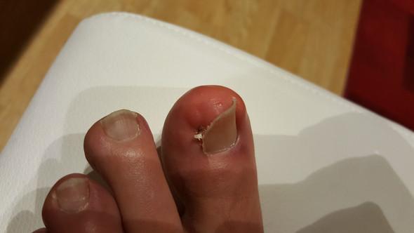 Bild2 - (Haut, Allergie, EntzÜndung)