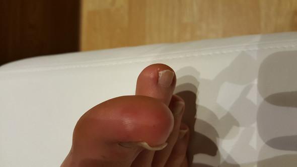 Bild3 - (Haut, Allergie, EntzÜndung)