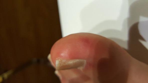 Bild5 - (Haut, Allergie, EntzÜndung)