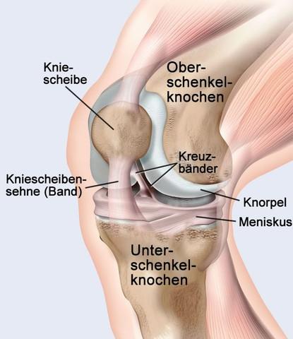 Es schmerzt da wo die Kniescheibensehen sind und da knackt es auch - (Schmerzen, Knie, knacken)