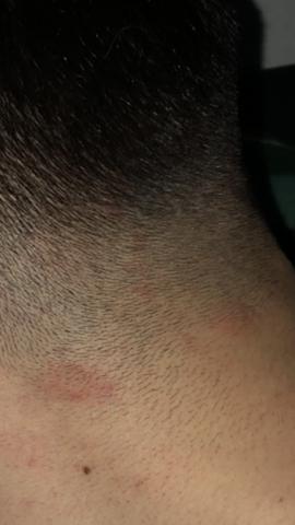 Stark Juckende Rötende Flecken Am Hinterkopf Gesundheit Und