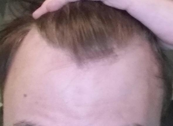 Meine Geheimratsecken und hohe Stirn - (Haare, Frisur, modern)