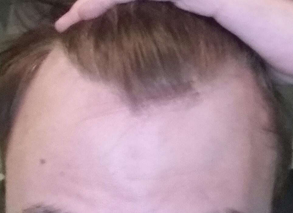 Starke Geheimratsecken Erst 15männlich Und Suche Moderne Frisur