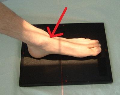 Genau an der Stelle wo der Pfeil hinzeigt - (Gesundheit, Füße, Gelenkschmerzen)
