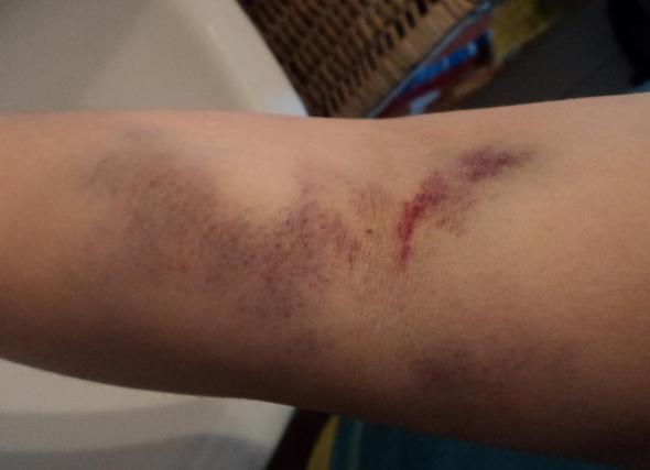 Blutabnahme schmerzen nach Beule nach