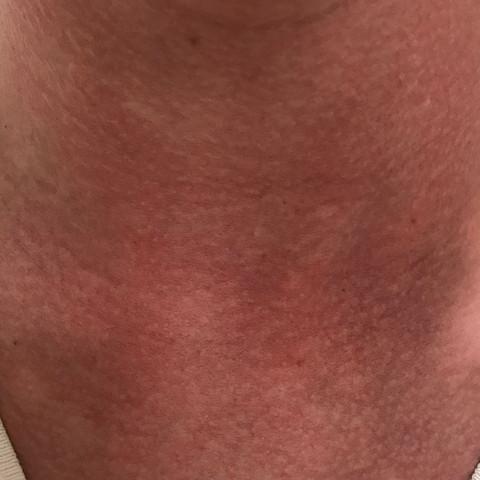 Mein Hals, sehr gerötet  - (Gesundheit, Medizin, Körper)