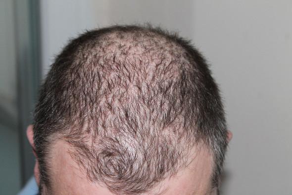 Stehen junge Frauen auf Haarausfall & Glatze beim Mann