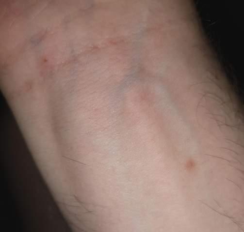 Stiche am Körper durch Flöhe, Milben oder ähnliches?