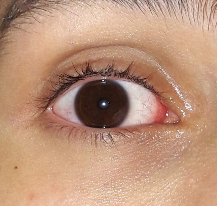 Verliebt große pupillen Ist Er