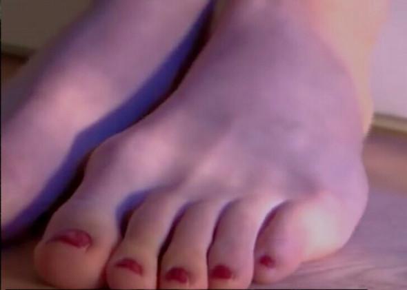 So sieht es aus - (Gesundheit, Schmerzen, Füße)