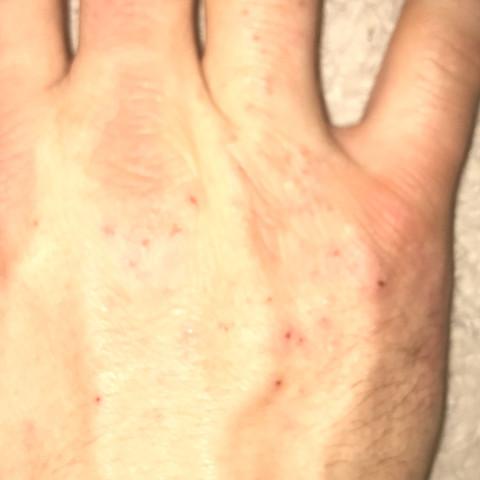 Blutung  - (Juckreiz, Hautkrankheit)