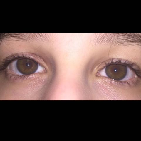 Links - (Gesundheit, Augen, Lid)