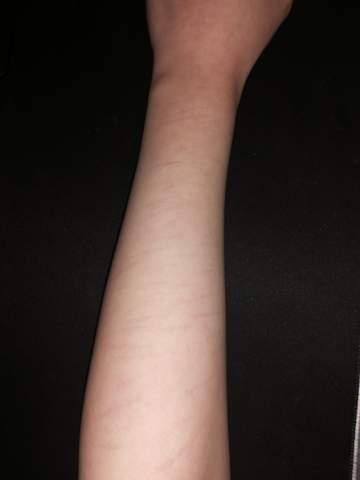 Tattoo über Narben vom ritzen?