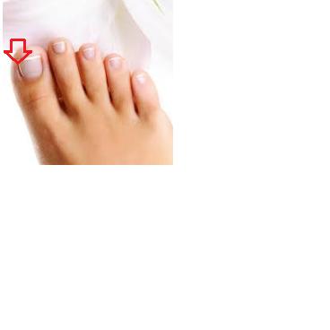 Ca hier, zwischen Nagel und Haut - (Füße, dunkle-stelle)