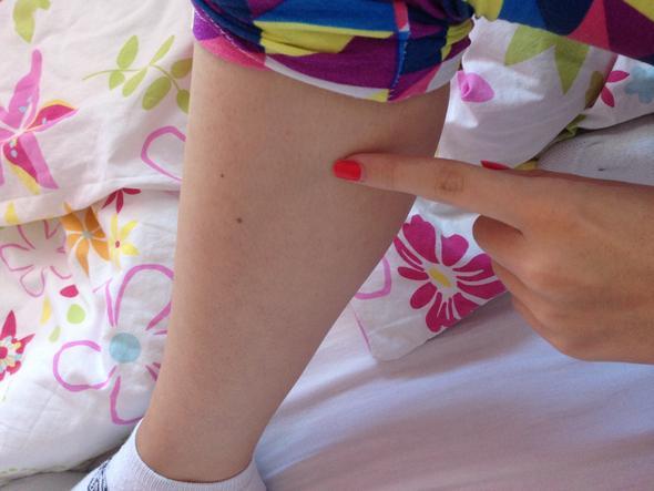 .. - (Beine, Thrombose)