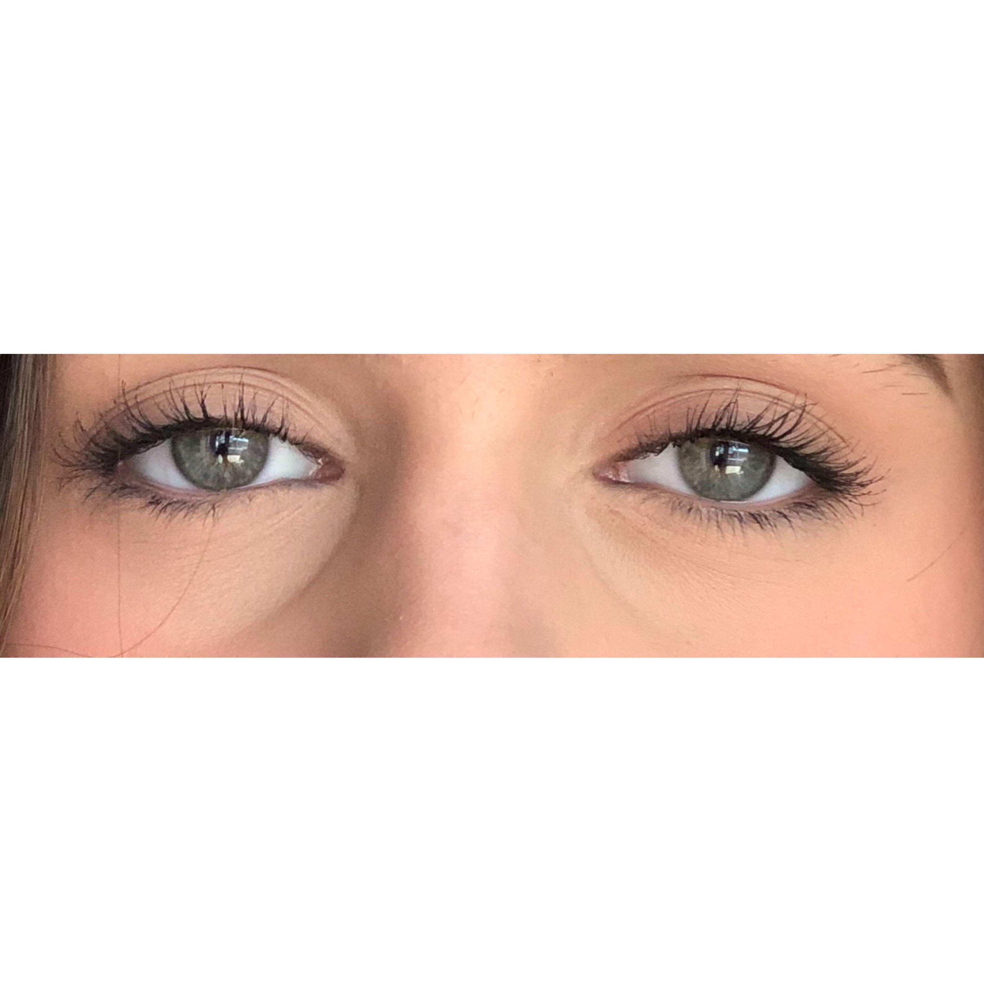 Tiefe Augenringe