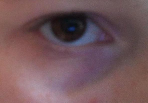 Das ist im gegensatz zu meinen Augenringen harmlos .!! ;) - (Creme, OP, Augenringe)