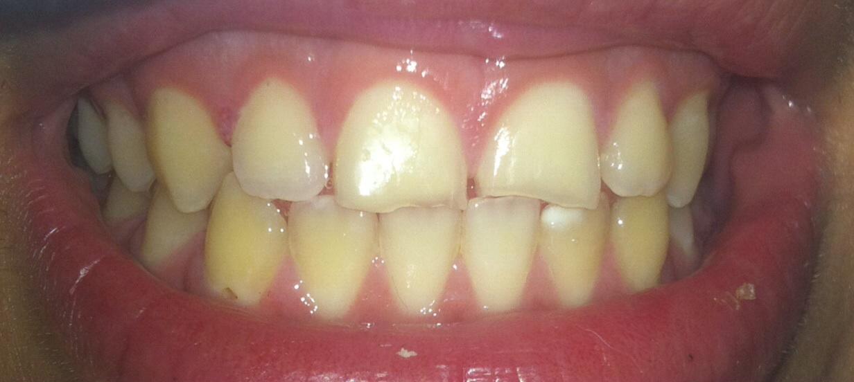 Zähne Gelb