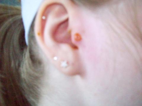 tragus piercing infektion