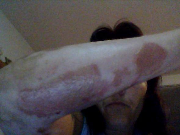 Das ist mein Arm das gleiche ist am Bauch auch noch mal  - (Hautpflege, hauttransplantation)