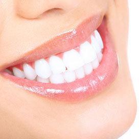So sind meine TRaum Zähne - (Beauty, Farbe, Zähne)