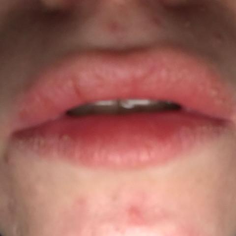 rote brennende lippen