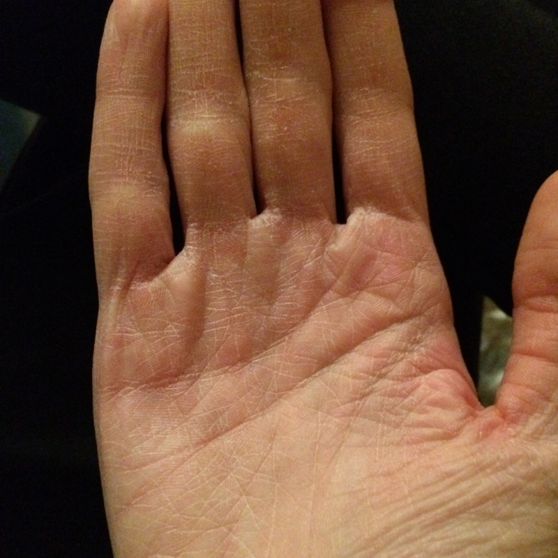 Trockene Hände Kinder