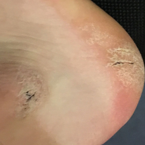 Bild 3 - (Haut, trocken)