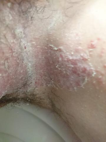Hautstelle zwischen Hoden und Oberschenkel - (Körper, Haut, Pubertaet)