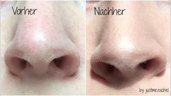 Trockene nase extrem Trockene Nasenschleimhaut: