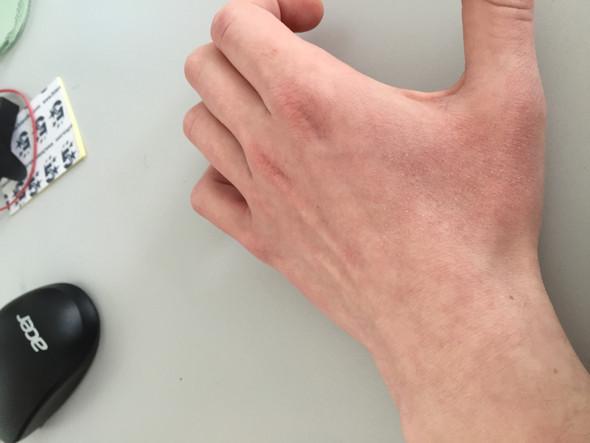 Handinnenflächen ursache rote Das verraten