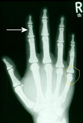 Trümmerbruch am kleinen Finger - Erfahrungsberichte ...