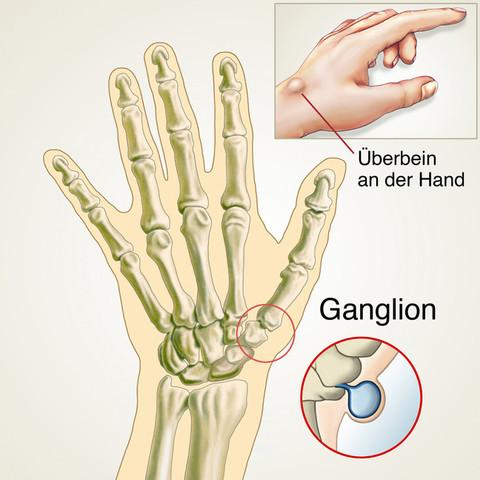 - (Medizin, Hand, Überbein)